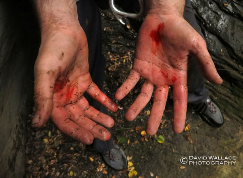 Kyle's bloody hands from not wearing rappelling gloves and not setting enough friction on his rappelling device.